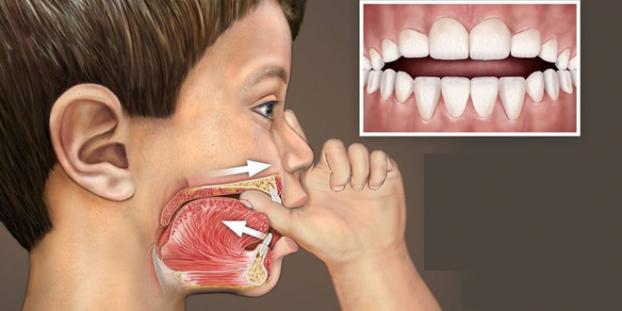 Những thói quen xấu làm xấu hàm răng ở trẻ nhỏ